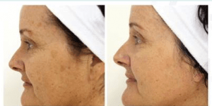 beforeafterpigment-jpg