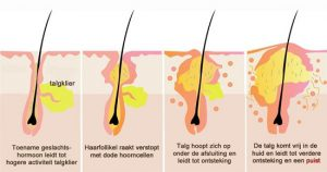 ontstaan-van-acne3